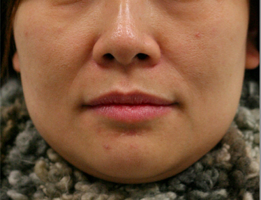 Face slimming01