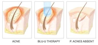 Blu U Treatment