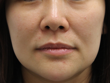 Face slimming02