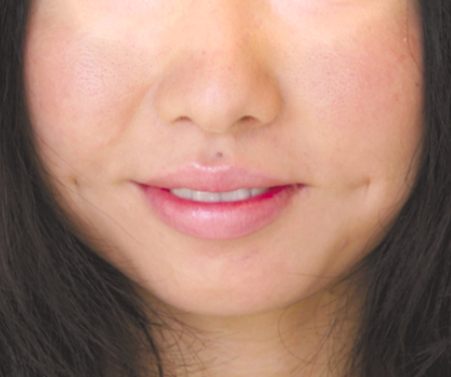 Face slimming05