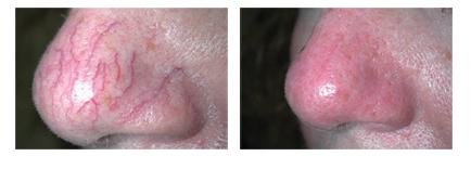 Facial Veins01