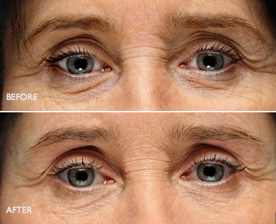 Fillers Wrinkles02